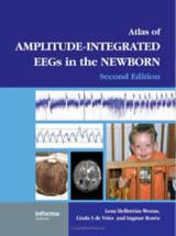 【本】Atlas of Amplitude-Integrated EEGs in the Newborn