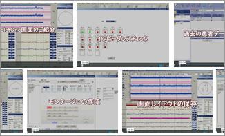 aEEG脳波計NicoletOne 動画マニュアル